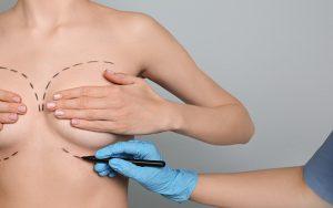 Breast Surgery Sets